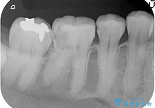セラミックインレー PGA(ゴールド)インレー 虫歯治療の治療前
