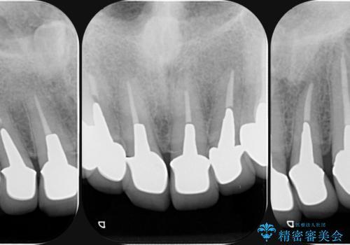 不自然なセラミックが気になる オールセラミックジルコニアクラウンによる前歯審美治療の治療前