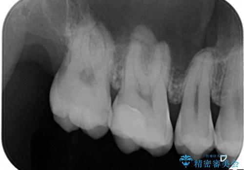 矯正前の虫歯治療でセラミックインレーをの治療後