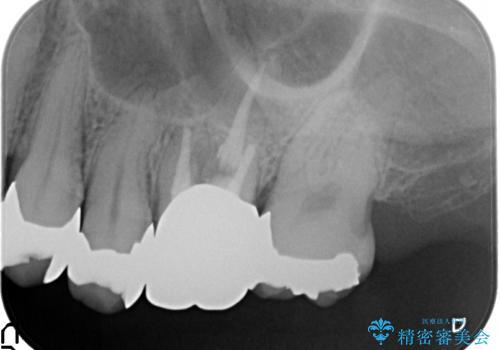 [噛むと痛い]残すことができない歯のオールセラミックブリッジ治療の治療前