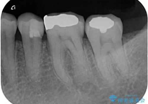 冷たいものがしみる 神経を極力残した虫歯治療の治療後