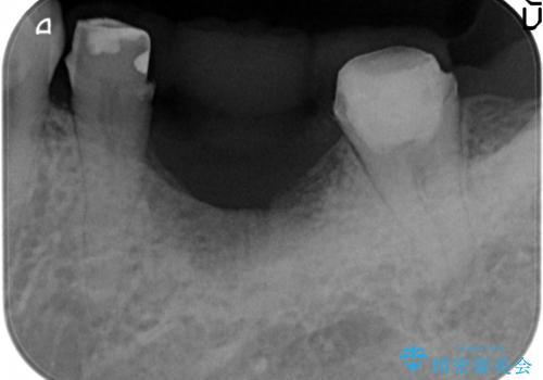 歯が割れた ブリッジによる咬合機能回復の治療前