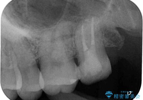 奥歯が痛い ゴールドクラウンによる補綴治療の治療中