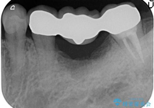 歯が割れた ブリッジによる咬合機能回復の治療後