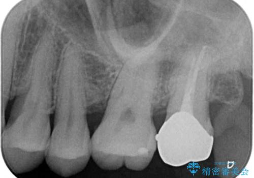 奥歯が痛い ゴールドクラウンによる補綴治療の治療後
