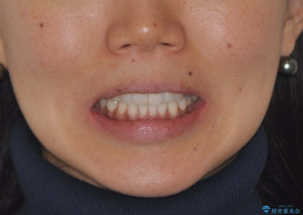 前歯の出っ歯とでこぼこをインビザラインで改善の治療後(顔貌)