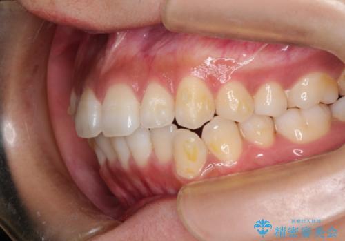 インビザラインで前歯のガタガタを改善の治療中