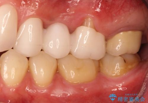 上の歯を全部セラミックにしたい。前歯のガタつきも治したい。の治療後