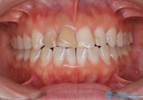 変色した前歯をオールセラミッククラウンに 下の前歯も一緒に部分矯正の治療前