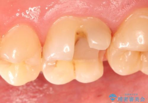 矯正前の虫歯治療でセラミックインレーをの治療中