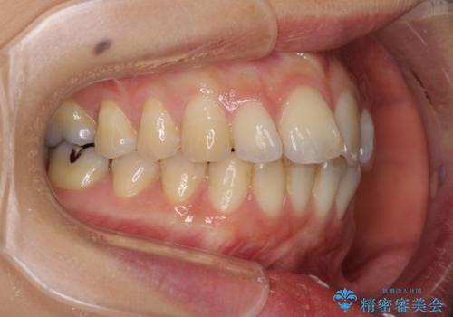 出産しながらでも綺麗な歯並びに インビザラインによる矯正治療の治療前