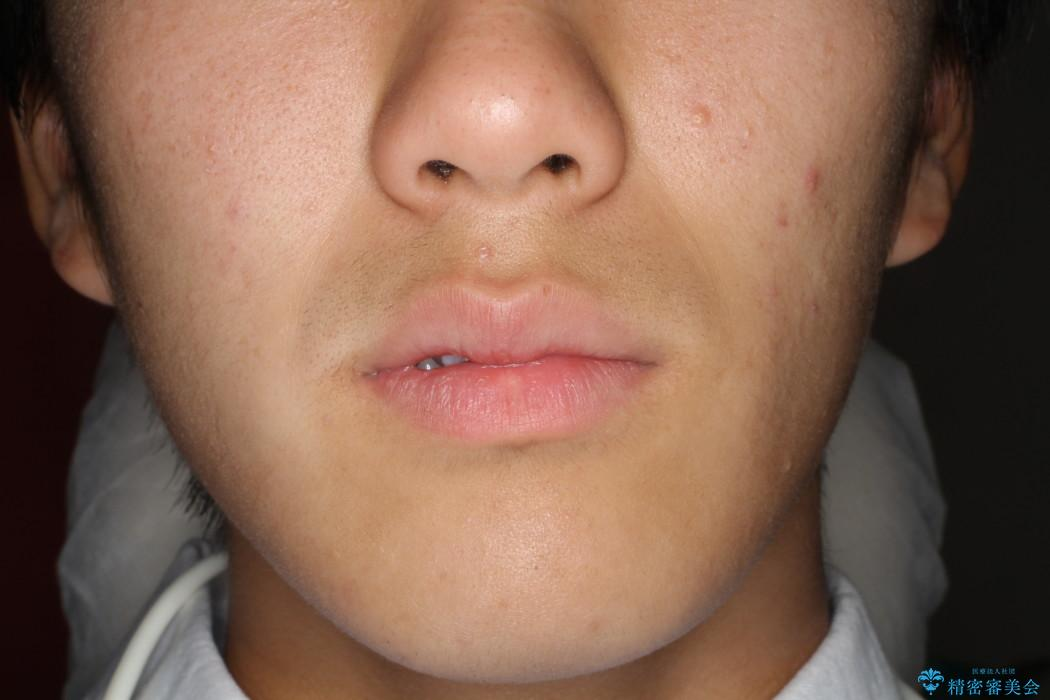 前歯のガタガタを改善 八重歯も無くなりキレイな歯並びにの治療前(顔貌)