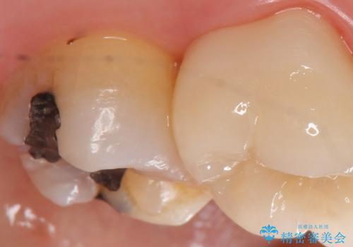 PGA(ゴールド)インレー 古い銀歯の修復の治療前