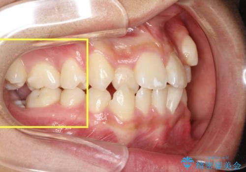 全顎矯正治療の部分的な紹介 ~横向きに生えた奥歯を整直させる~の治療前