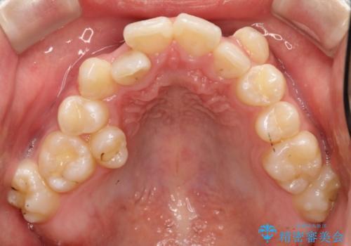 前歯のガタガタを改善 八重歯も無くなりキレイな歯並びにの治療前