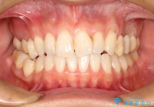 上の歯を全部セラミックにしたい。前歯のガタつきも治したい。の治療前