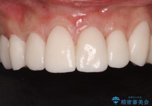 上の歯を全部セラミックにしたい。前歯のガタつきも治したい。の治療中