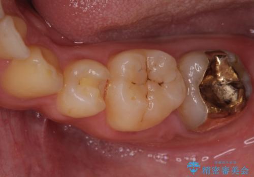 小さい虫歯 歯にやさしいゴールドインレーの治療中