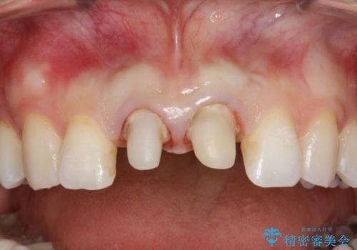 前歯のセラミック治療 根管治療からやり直しの治療中
