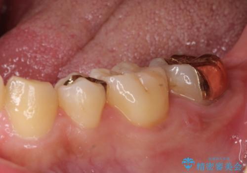小さい虫歯 歯にやさしいゴールドインレーの治療後