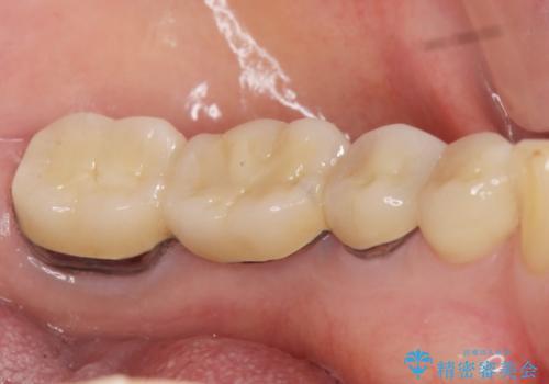 歯が痛い 根管治療とブリッジのやりかえ 60代女性の治療後