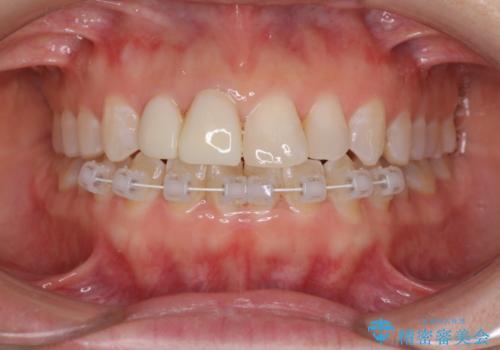 変色した前歯をオールセラミッククラウンに 下の前歯も一緒に部分矯正の治療中