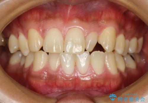 顎のゆがみの症例 治療前