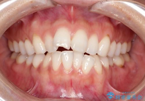 前歯の出っ歯とでこぼこをインビザラインで改善 の症例 治療前