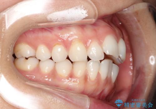 前歯の出っ歯とでこぼこをインビザラインで改善の治療前
