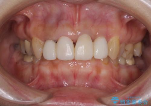 前歯が痛く、歯を磨くと出血するの治療中