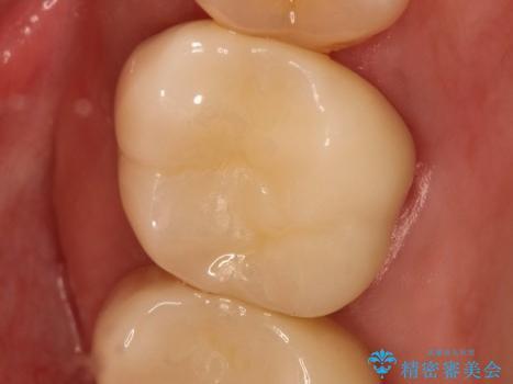 金属の詰め物の下に虫歯が オールセラミッククラウンによる虫歯治療の治療後
