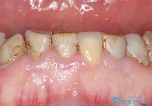 前歯2本のオールセラミッククラウン 根管治療後の補綴の治療前