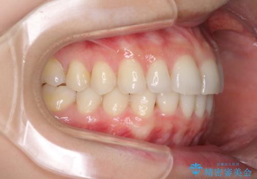 長年気にしていた前歯をインビザラインで整えるの治療中