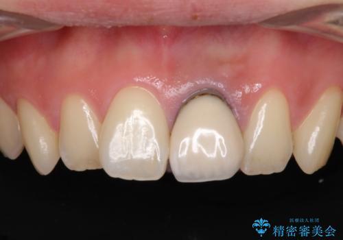 歯肉のラインが汚れている前歯 セラミックによる審美治療の治療前