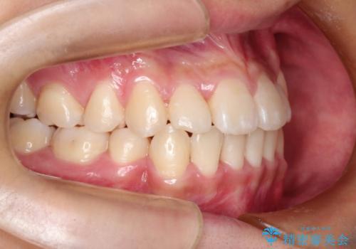 前歯のガタガタを改善 八重歯も無くなりキレイな歯並びにの治療後
