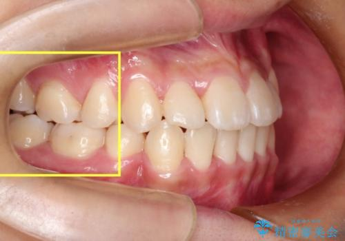 全顎矯正治療の部分的な紹介 ~横向きに生えた奥歯を整直させる~の治療後