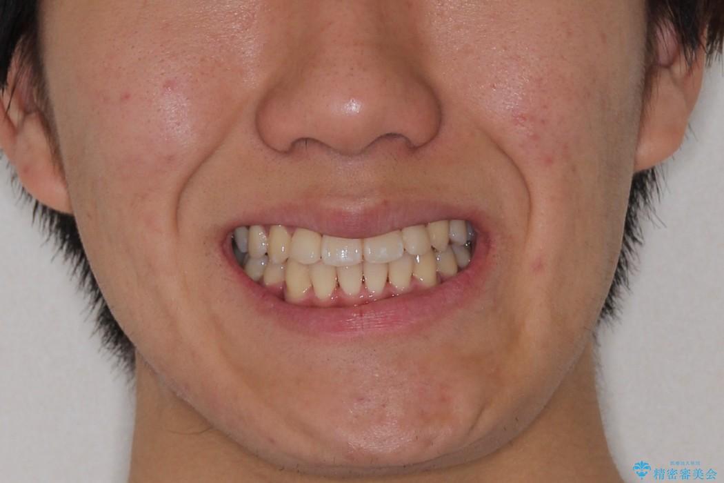 前歯のガタガタを改善 八重歯も無くなりキレイな歯並びにの治療後(顔貌)