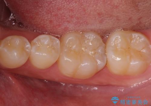 小さい虫歯 見た目がきれいなセラミックインレーの治療前