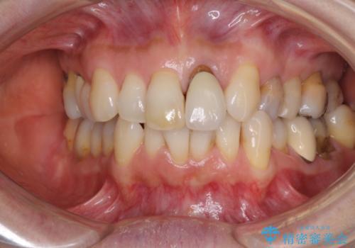 前歯の茶色い縁を綺麗にしたい 前歯のオールセラミックの治療前