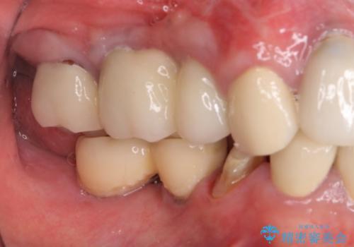 汚れがたまって気になる 歯ぐきとの境目から虫歯の治療中