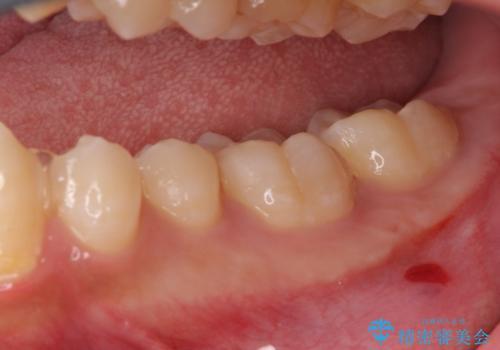 小さい虫歯 見た目がきれいなセラミックインレーの治療中