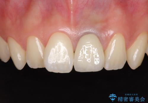歯肉のラインが汚れている前歯 セラミックによる審美治療の治療後