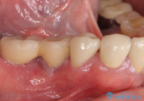 汚れがたまって気になる 歯ぐきとの境目から虫歯の治療後