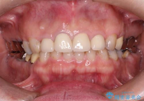 前歯をきれいにしたいの症例 治療後