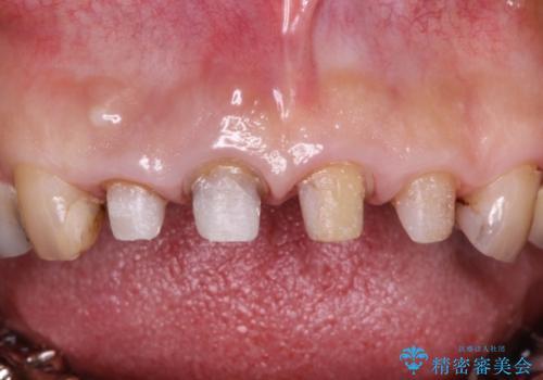 前歯をきれいにしたいの治療中