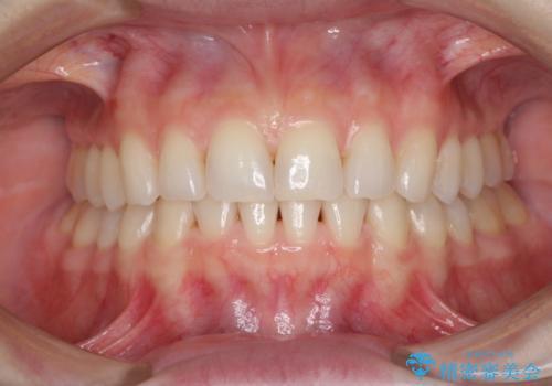 長年気にしていた前歯をインビザラインで整えるの治療後