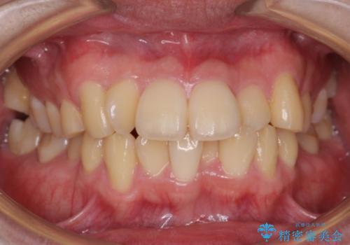 前歯のねじれ 下の歯のガタガタの症例 治療前