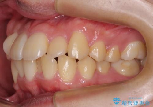 前歯のねじれ 下の歯のガタガタの治療前