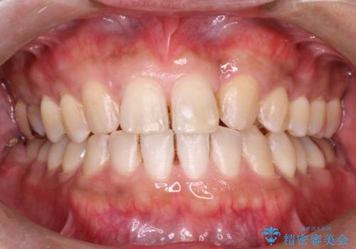 顎のゆがみの症例 治療後