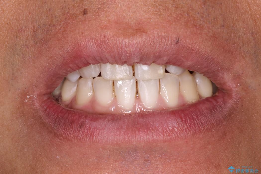 先天欠損の難症例 表のワイヤー矯正による治療の治療後(顔貌)
